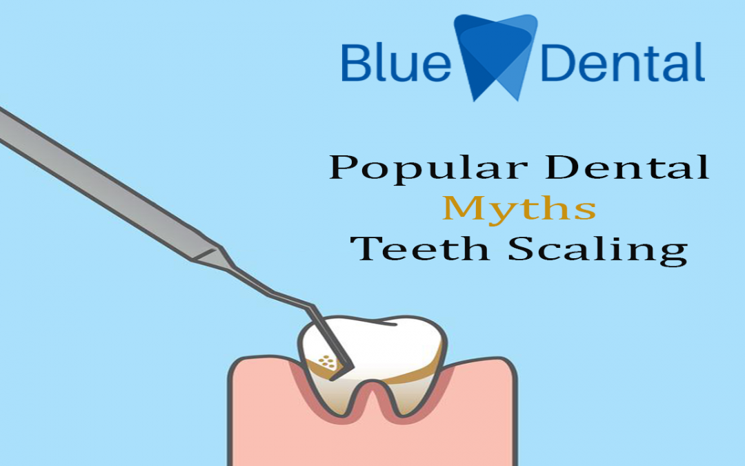Popular Dental Myths about Scaling (Teeth Cleaning)