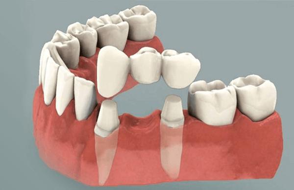dental crown in chennai