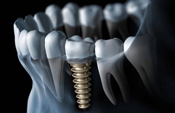 dental implant in chennai